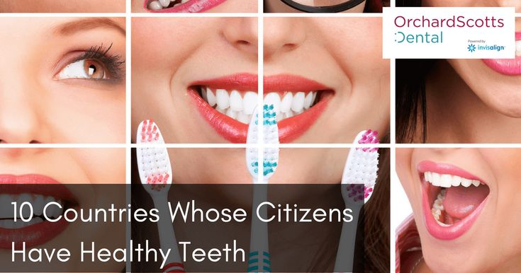 How long do you have to wear invisalign for an overbite