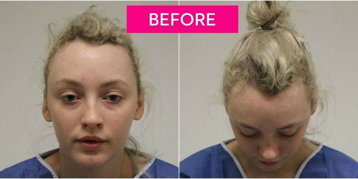 She needed a hair transplant to correct the damage, and now she's warning…