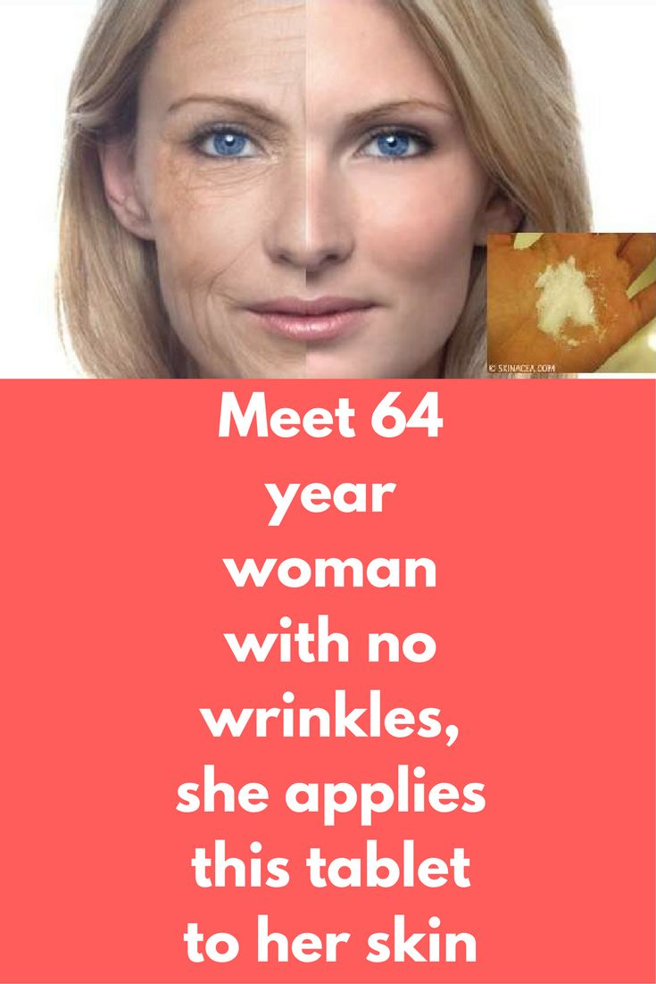 Meet 64 year woman with no wrinkles, she applies this tablet to her skin Can you expect someone 64 year old with no wrinkles, but yes it is true. This woman uses aspirin as her secret weapon. YOu will not believe but Aspirin is a very powerful way to get perfect beautiful skin. And it is very easy to use this ingredient For this you will need 3 Aspirins …