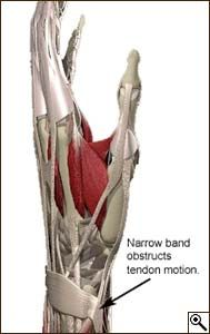 Tendon Entrapment DeQuervain's (surgery releases this band. I still have major problems with it though.)