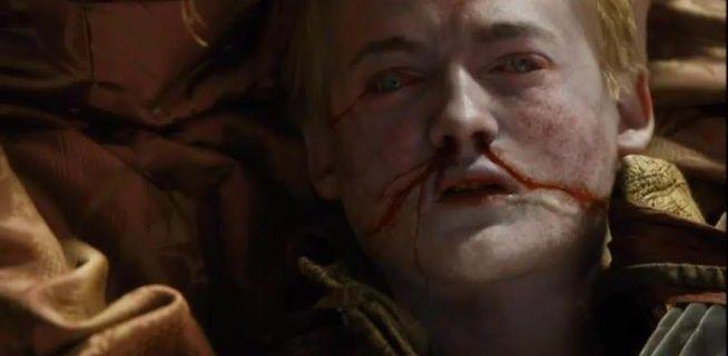 Port-Réal : Le roi Joffrey se remet doucement de sa conjonctivite