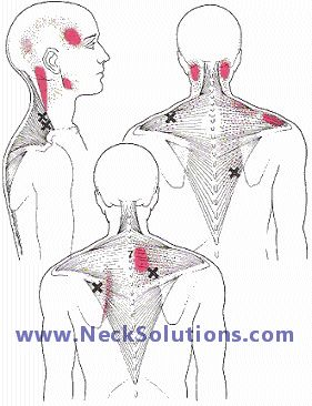 Neck and shoulder pain causes are many. Problems with neck joint and nerve injury, degenerative disc disease or cervical spondylosis along with muscle strain can refer pain to these areas in certain patterns.