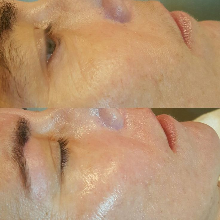 Before and after of Dermaplaning Before and after of Dermaplane