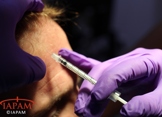 #IAPAM Botox Training taking place at a recent Aesthetic Medicine Symposium (http://www.aestheticmedicinesymposium.com/botoxtraining)