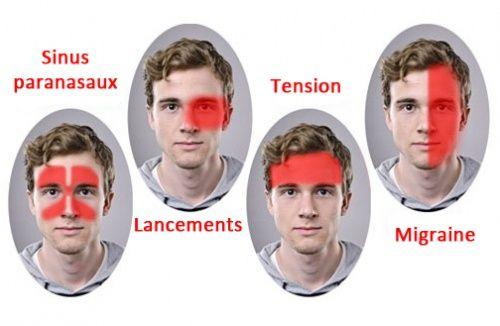 Un nouveau traitement efficace contre la migraine découvert ! - Améliore ta Santé