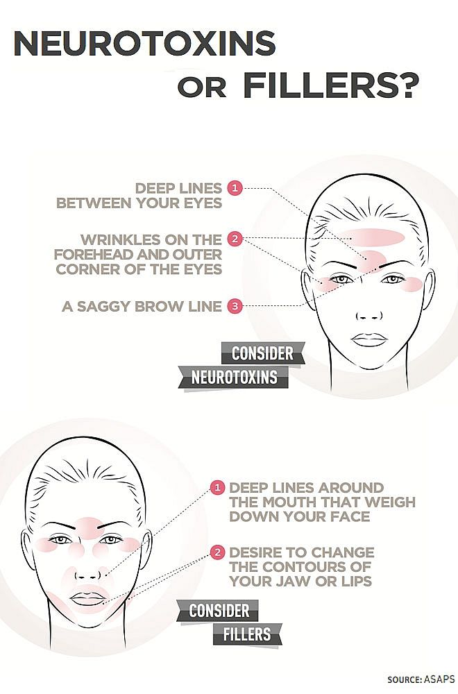 Infographic: Neurotoxins Or Fillers? - Hot Topic - NewBeauty