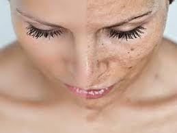 Remedios caseros para las manchas en la cara.