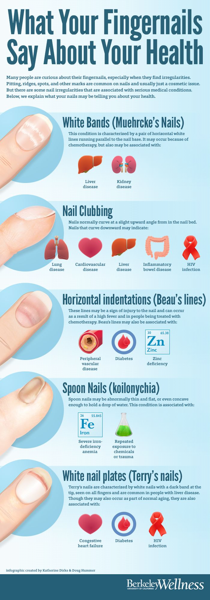 Most #fingernail irregularities are simply cosmetic, but there are some #nail irregularities that are associated with serious #medical conditions. Learn what your nails may be saying about your #heath: http://www.berkeleywellness.com/self-care/preventive-care/article/what-nails-say-about-your-health/?ap=2012 #fun #hearthealth #diabetes #HIV #AIDS