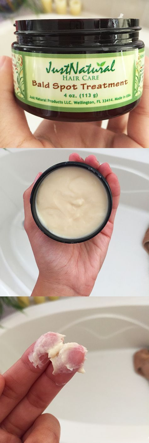 The cream targets your bald spots with rich natural nutrients. Bald spots can result from harsh chemicals, hair styling methods, allergic reactions, hair color, relaxers, medications, stress or health and diet conditions. Often hair follicles go dormant to try to recover from the damage. Bald spots may not be permanent. If no further damage occurs and you begin to nurture your follicles they may be able to recover and allow healthy hair to fill in the spot.