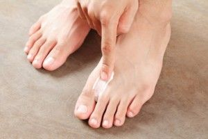 Contagious fungal infections causes, prevention and treatment