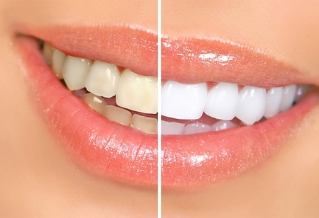 Dientes blancos, Sonrisa perfecta !  Bs. 450 en vez de Bs. 950 por Una consulta Odontológica + Una limpieza + Un blanqueamiento + Una aplicación de Fluor en Vanity Dental