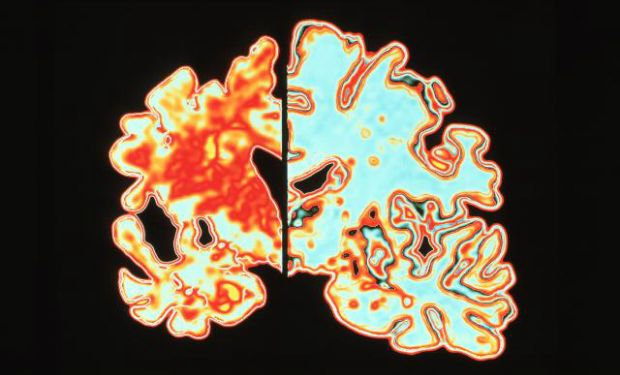 The 10 Surprisingly Common Signs of Alzheimer's