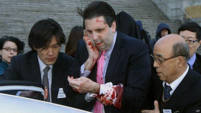 El embajador de EE.UU. en Corea del Sur, Mark Lippert, resultó herido al ser atacado con cuchillo, la mañana del jueves hora local. El diplomático, quien acudía a una reunión desayuno en la capital...