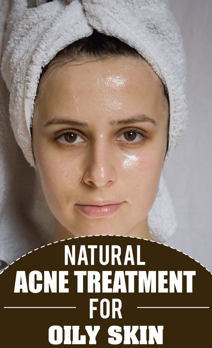 Natural Acne Treatment for Oily Skin | Remedies Corner