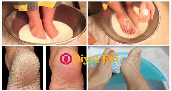 Aspirin ve limonla topuk çatlağı tedavisi nasıl yapılır topuk dikeni tedavisi, topuk çatlaklarına ne iyi gelir bitkisel tedavi yöntemi, karbonat topuk