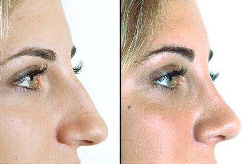 Nose Job: Before and After A rhinoplasty (commonly termed a nose job) is a procedure in which the nose is reshaped to correct crookedness or remove a bump or lump or simply reduced in size to better fit the facial structure. It is usually not done on patients younger than 15 years of age. Recovery takes about 1 to 3 weeks and complications are rare.