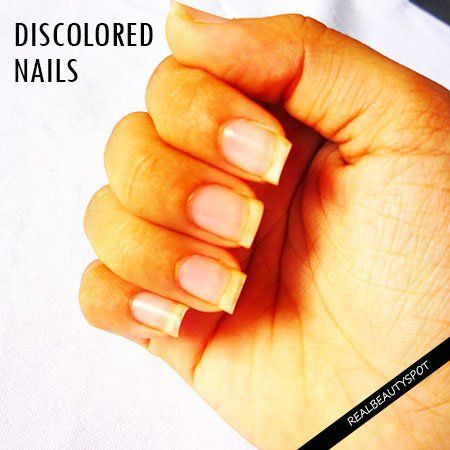 NATURAL REMEDIES TO TREAT NAIL DISCOLORATION