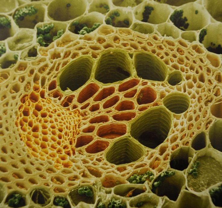 Electron microscope closeup of plant stem