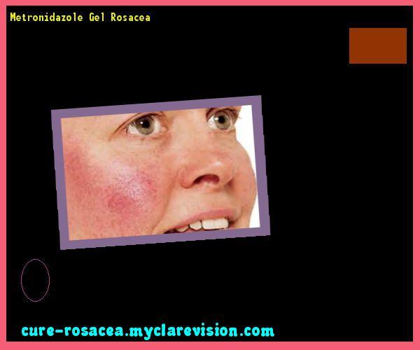 Metronidazole Gel Rosacea 192437 - Cure Rosacea