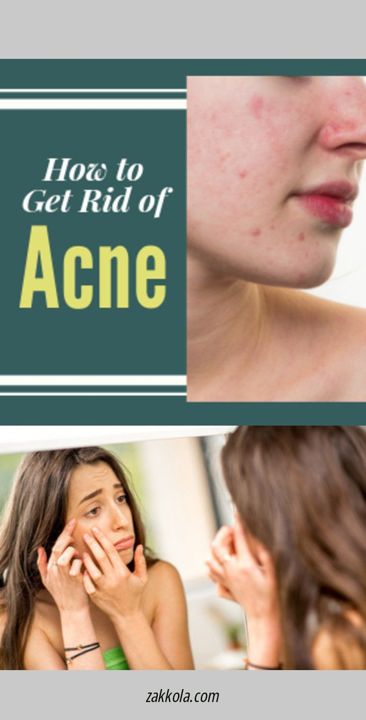 Find more information on acne. Click the link to …