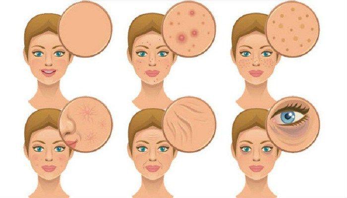 V důsledku špatných stravovacích návyků má mnoho lidí problémy s kůží. Nesprávná strava ničí pleť. Je nutné z potravy vyloučit těstoviny a mléko.