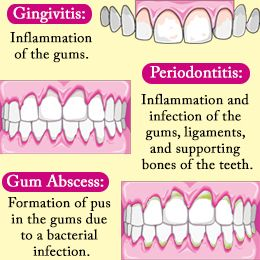 Over the counter antibiotics for tooth infection - HealthTap