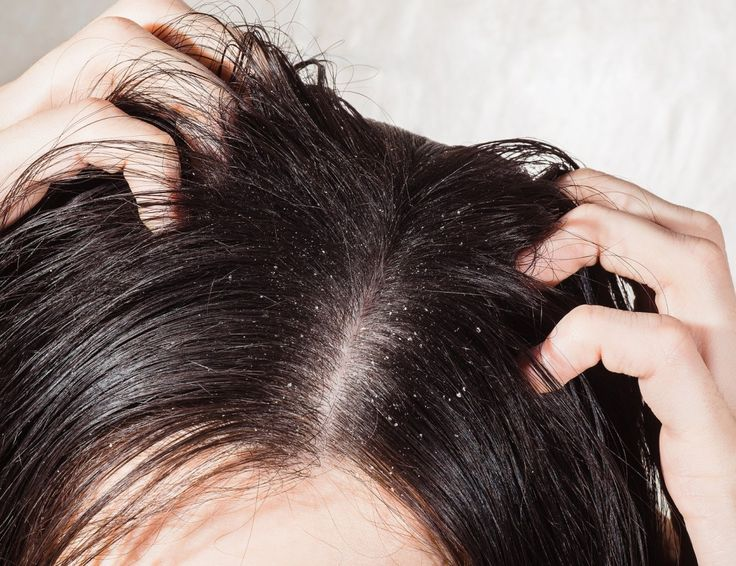 Natural Dandruff Treatment  These natural Remedies are safe and are free of harmful chemicals. Read on for natural at home treatments for dandruff.