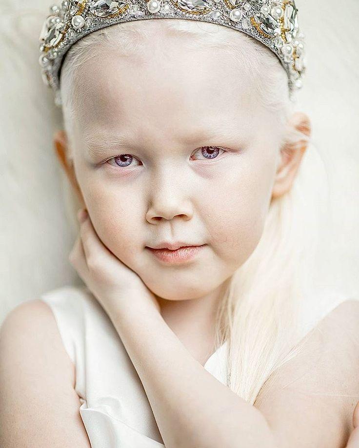 Oroszország leghidegebb részén Szibériában él egy nyolc éves kislány aki a modell világot teljesen a feje tetejére állította. A kislányt Nariyanának hívják és az albinizmus egyik különleges fajával született. Ő az egyetlen a családjában ezzel a betegséggel és mikor véletlenül találkozott Vadim Rufov fotóssal, akkor ismerhette meg a világ különleges szépségét. Nariyanát most Hófehérkének becézik. Miután a róla készült képek ismertté váltak, rengeteg modell szerződés ajánlatot kapott a…