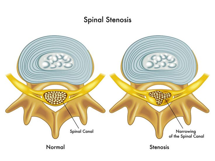 Visit the SpineUniverse Spinal Stenosis Center for doctor-written and reviewedinformation on lumbar and cervical spinal stenosis.