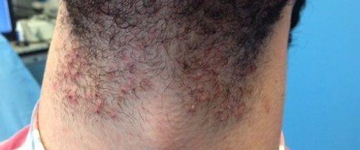 ¿Tienes foliculitis? . ¡Consúltanos!  La foliculitis es la inflamación de uno o más folículos pilosos. La afección se puede dar en cualquier lugar de la piel tanto a hombres como a mujeres.   Hoy en día, la depilación láser se considera el tratamiento de primera elección para los pelos enquistados o enclavados (pseudofoliculitis) e infectados (foliculitis), por delante de tratamientos como los antibióticos o la cirugía.   En esta foto os mostramos un cuello de un chico con foliculitis.
