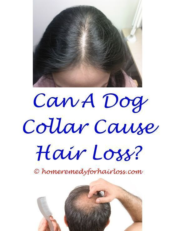 best treatment for hair loss and regrowth - can products cause hair
