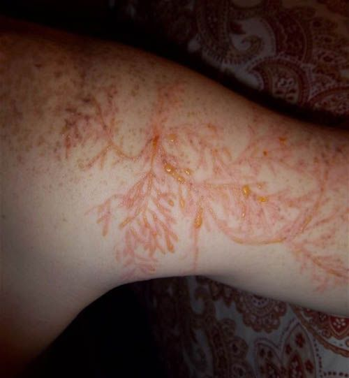 Being struck by lightning is a dangerous and scary experience and can even be fatal. Sometimes, the electrical discharge can leave a tattoo-like marking or scar known as a Lichtenberg figure. The patterns created are known to be examples of fractals.    Lichtenberg figures are branching electric discharges that sometimes appear on the surface or the interior of insulating materials. They are named after the German physicist Georg Christoph Lichtenberg, who originally discovered and studied…