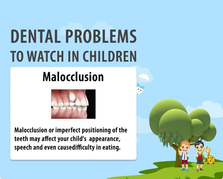 Malocclusion makes your teeth crowded, crooked and protruding, affecting your outlook, making you stay away from others! Why a disharmony for your face? Get it corrected soon. #dental #dentalcare #dentalclinic http://www.novadenttly.com/
