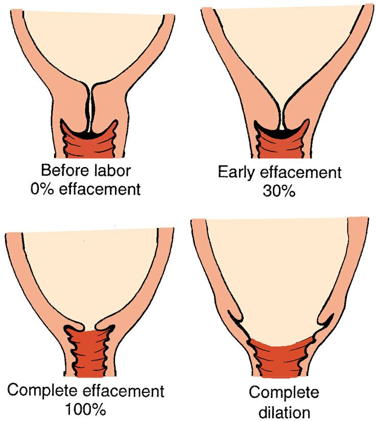Image result for vagina examination labour stages