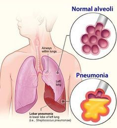 QUESTION: What is a good natural remedy for pneumonia that works quickly and is not going to make my symptoms worse?    ANSWER: Pneumonia is a respiratory