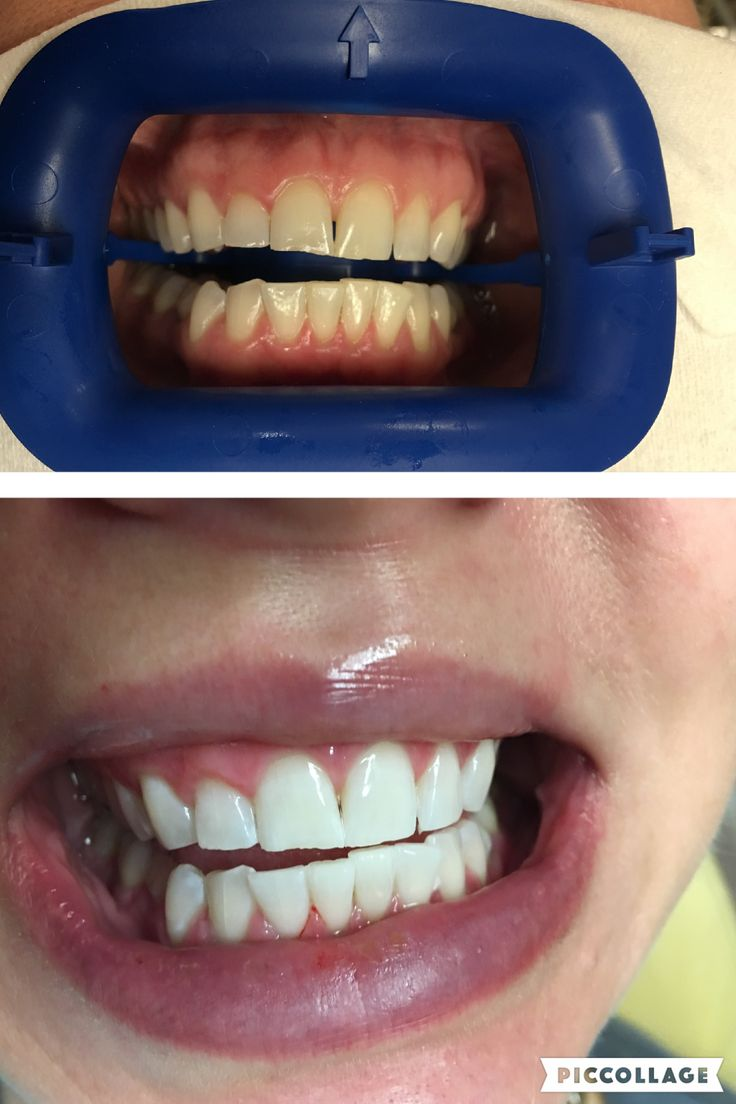 Colgate teeth whitening teeth whitening products pinterest teeth - Zoom Teeth Whitening The Top Picture Is A Before Image The Bottom Is After