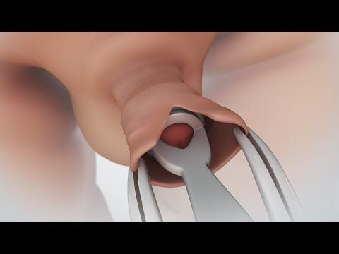 Patient Education Video: Circumcision - YouTube