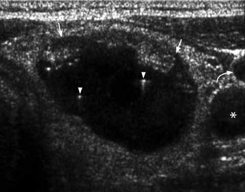 Thyroid - Colloid Nodule - The presence of comet-tail artifacts (arrowheads) within a predominantly cystic thyroid nodule (arrows) indicates the presence of colloid within a benign colloid nodule and is a strong predictor of benignity.