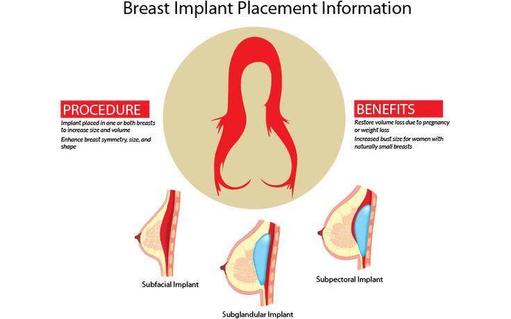 Pin On Women Health