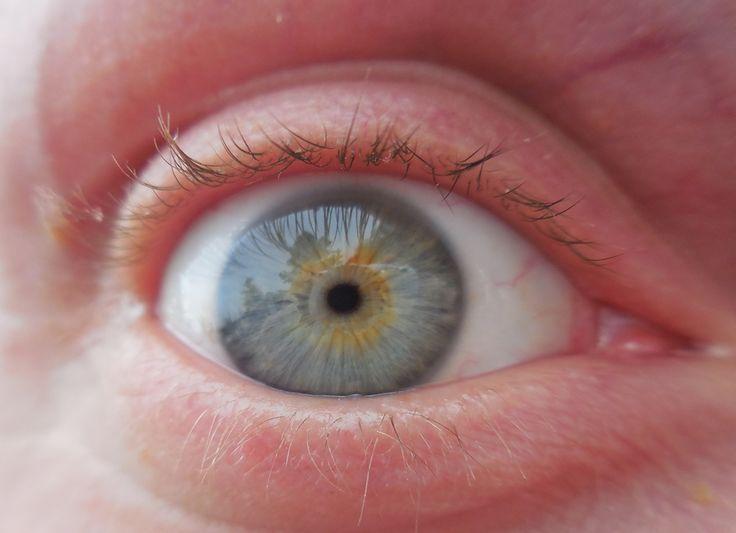 Zsolti - right eye
