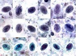 Image result for Giardia Lamblia Cyst