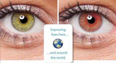Colour changing contact lense to warn diabetics of rising blood glucose levels. Useful and cool!