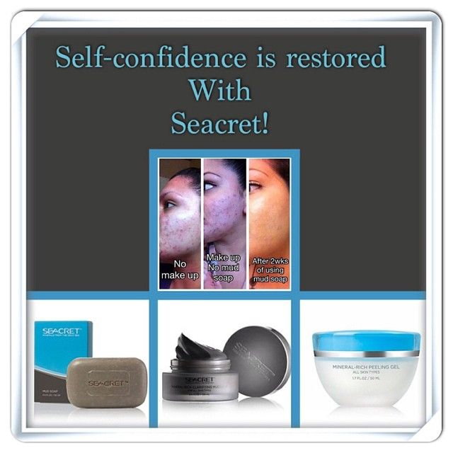 Do you know anyone suffering from lack of confidence due to acne?  Seacret products may help...the results have been astounding! #Mudsoap #mud mask #ourseacret
