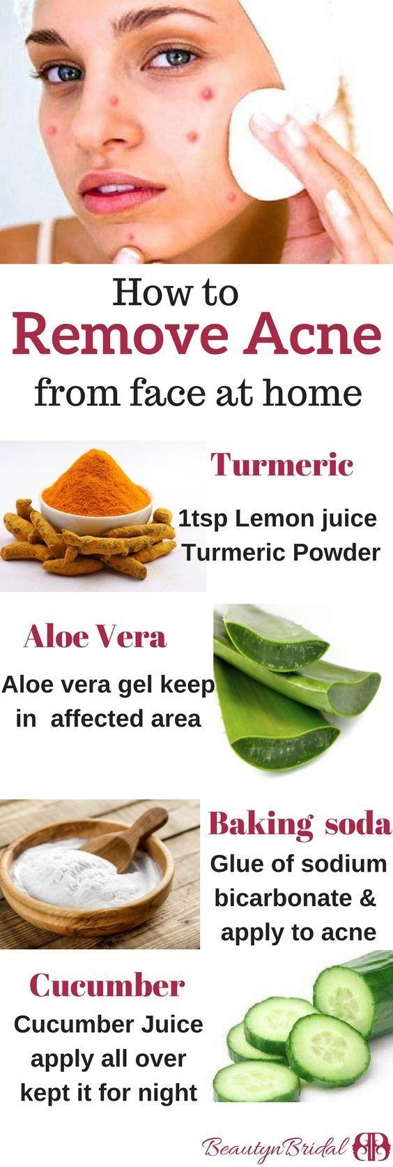 So entfernen Sie Pickelflecken aus Gesichtsmitteln Pickel Narben Dunkle Flecken