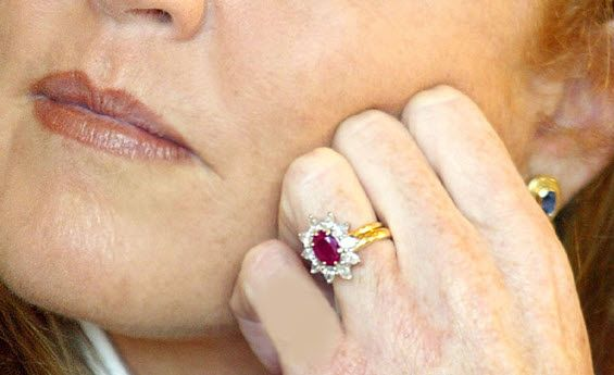 Duchess of York Sarah Ferguson's ruby engagement ring. Prince Andrew gave his bride-to-be an engagement ring with a stunning Burmese ruby, surrounded by ten drop diamonds. It is a Garrard ring made from Prince Andrew's own sketches. The mounting is 18 carat white and yellow gold.