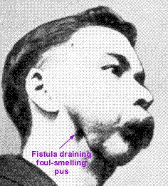 Phossy jaw, formally phosphorus necrosis of the jaw, is an occupational disease of those who work with white phosphorus, also known as yellow phosphorus, without proper safeguards. It was most commonly seen in workers in the match industry in the 19th and early 20th century.
