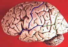 Frontal lobe disorder - Wikipedia, the free encyclopedia