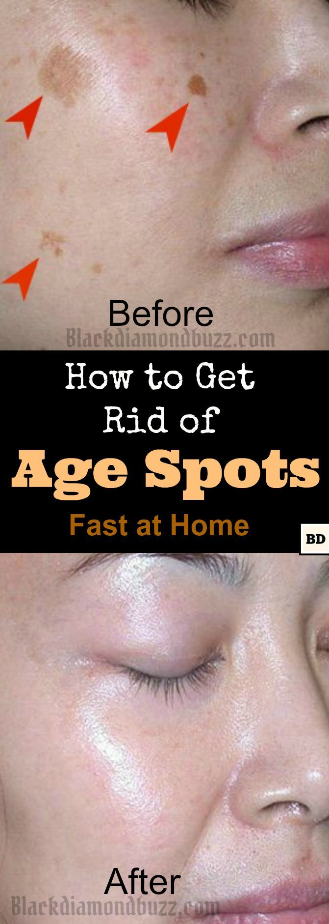 DIY age spots Removal - This How to Get Rid of Age Spots on Face fast at home, With all these active ingredient : apple cider vinegar ,baking soda,essential oils and lemon .   Essential oils Anti-aging Serum for dark age spots Removal    >3 drops of cypress essential oil  >14 drops of Frankincense Oil  >20 drops of Geranium essential oil  >4 tbsp of Rosehip seed oil  >3-4 tbsp of sweet almond oil
