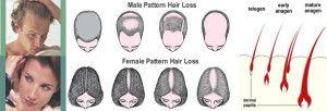 Alopecia este definita ca pierderea parului , o cauza http://www.medpont.ro/dermato-venerologie/alopecia/