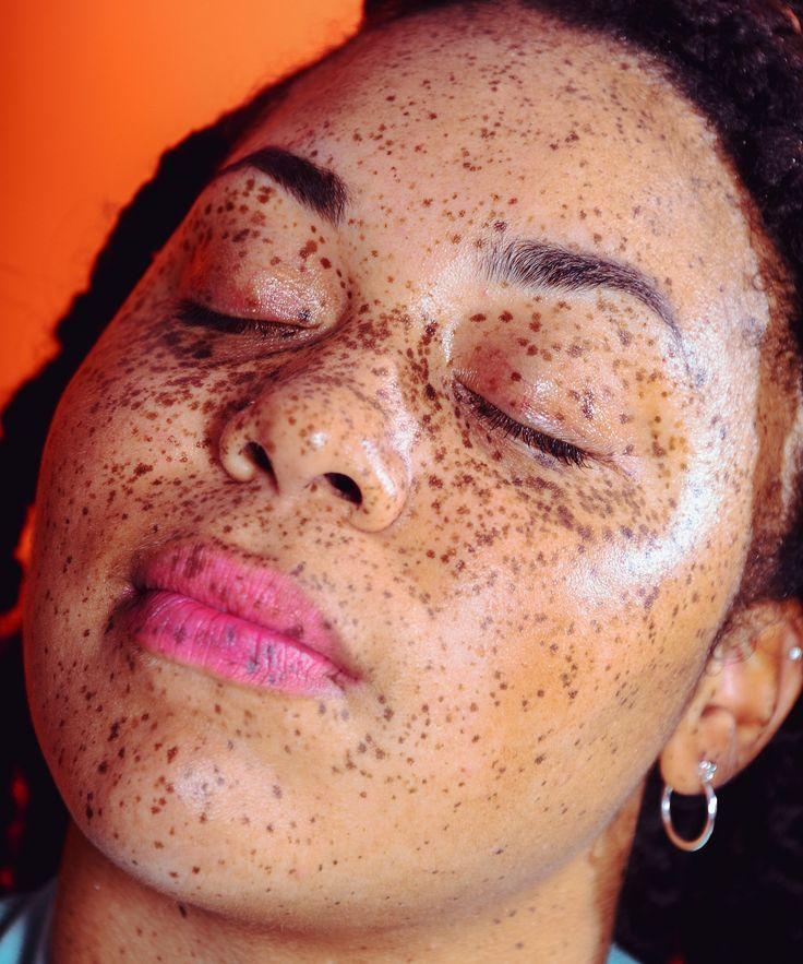 Girls facial for dark skin daniels
